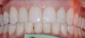 Orthodontics 5