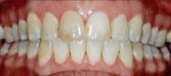Orthodontics 6